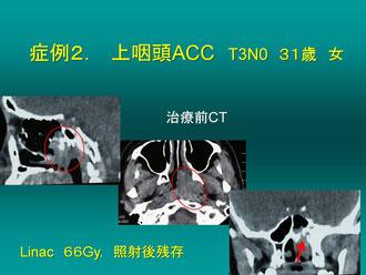 上咽頭ACC, Boost治療