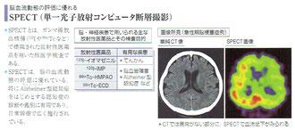 「病気がみえる vol.7 脳・神経」より