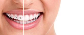 Zahnspange Zähne Lächeln Mund