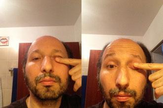 Das könnte problematisch werden: Mögliche Verstärkung von Dehnübungen der Augenmuskulatur.