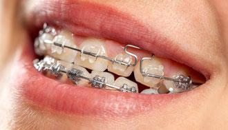 Fest sitzende Zahnspangen: Worauf Sie bei der Reinigung achten müssen! (© proDente e.V.)