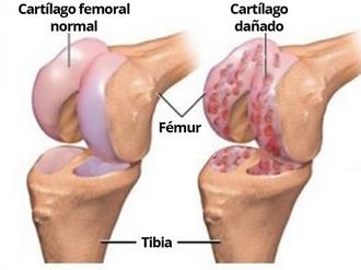 Resultado de imagen de Artrosis