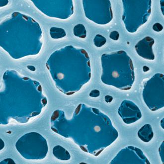 kolorierter Pollen (netzförmige Pollenoberfläche)