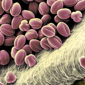 """""""think pink"""", kolorierter Pollen von Ranunculus, Druck auf Alu, 2014, 40 x 30 cm"""