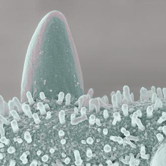 """""""Der Fels"""", kolorierte Pollenkornoberfläche (Kürbis), Druck auf Alu, 2014, 80 x 60 cm"""
