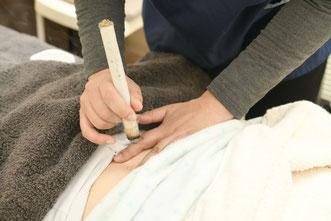 不妊専門の鍼灸治療院のお灸治療風景