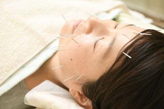 薄毛しわたるみの鍼灸治療