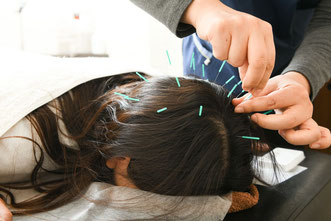 育毛鍼灸で頭部の緊張緩和