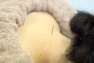 横浜での女性鍼灸