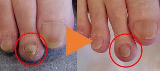 第2趾分厚い爪の経過写真
