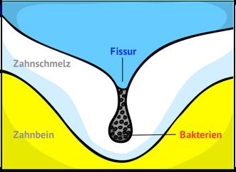 Bakterien in der Fissur (© wigerio)