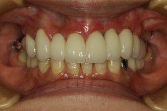 インプラントの歯茎下がってしまった場合の歯茎の再生治療
