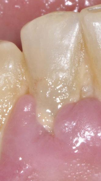 Ursachen für Parodontitis müssen beseitigt werden.