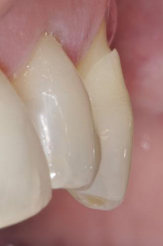 Manchmal folgt dem Zahnfleischrückgang auch der Verlust von Zahnsubstanz
