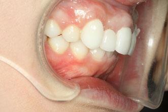 八重歯の歯並び