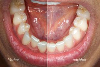 Vor und nach der Zahnkorrektur mit der HarmonieSchiene® von Orthos