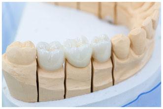 Im Dentallabor: Prothesensattel mit Zahnersatz © StudioLaMagica
