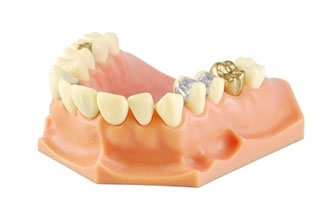 Dental model (with different treatments) © Luis Santos