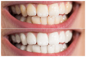 Person Teeth Before And After Whitening © Andrey Popov