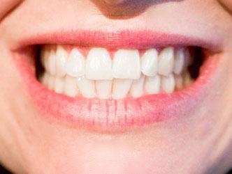 Gesichtsausschnitt mit Mund und  zusammengebissenen Zähnen