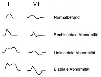 EKG atriale Abnormitäten