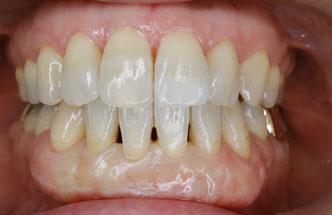 歯と歯の間の隙間の治療