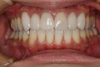 顎のズレと審美歯科治療
