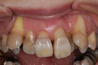 八重歯の歯茎再生