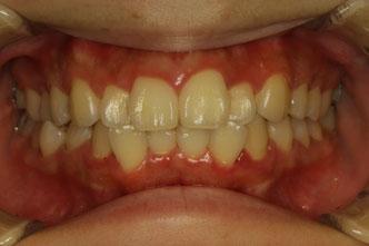 歯並びの治療 部分矯正
