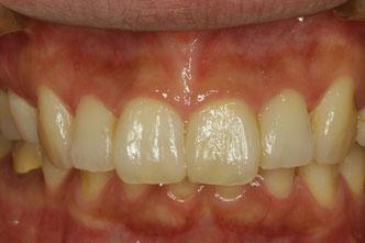 歯と歯の間の隙間の治療 治療後