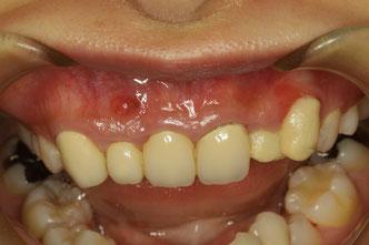 八重歯の審美歯科治療