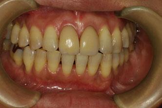 前歯が歯周病の方の審美歯科