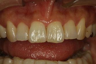 歯と歯の間の隙間の治療 治療前