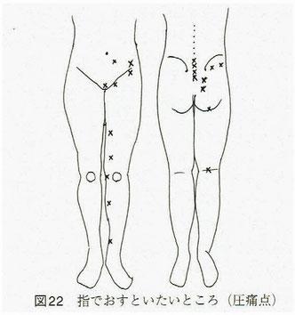 下肢の圧痛点