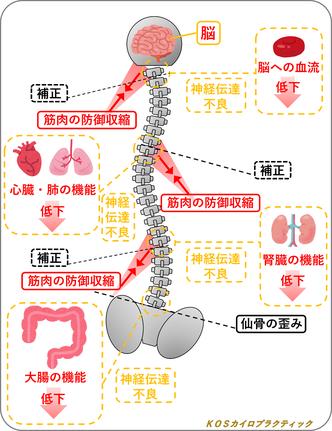 カイロプラクティックが考える、仙骨の歪み、補正、筋肉の防御収縮、神経伝達不良、内臓の機能低下