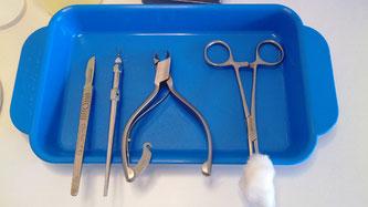 Soin de pédicurie pour cors verrues traitement des ongles incarnés des mycoses des ongles épaissis