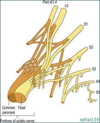 腰仙骨神経叢障害による坐骨神経痛