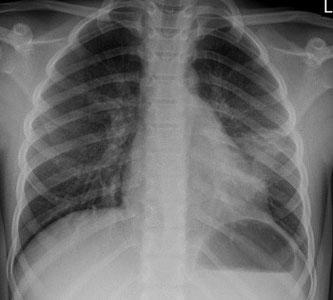 Unsere beispielhafte Röntgenaufnahme zeigt die Lungen eines Kindes mit einer Pneumonie.