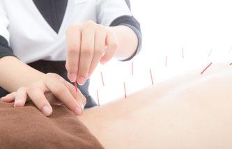 全身の鍼灸治療