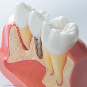 Zahnimplantat im Kieferknochen: Zahnarztpraxis Dr. Steffen Balz in Backnang