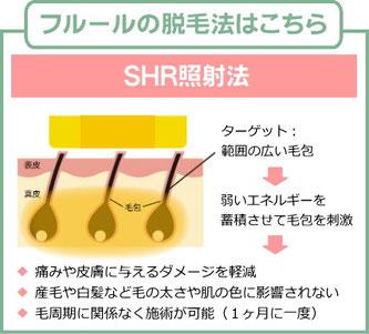 フルールの脱毛法:SHR照射法