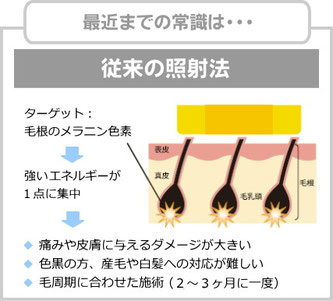 従来の脱毛の照射法