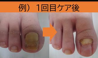 爪甲鉤彎症 1回目ケア例