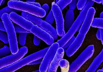 Das stäbchenförmige Escherichia coli-Bakterium kann schwere Infektionen verursachen (rasterelektronenmikroskopische Aufnahme). NIAID