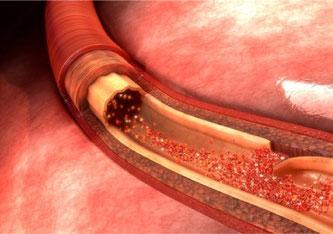 Rissbildung an der Halsschlagader (Zervikalarterien-Dissektion) ist die häufigste Ursache eines Hirnschlags bei Personen unter 50 Jahren. Der Einsatz von Aspirin als Standardtherapie in den ersten 90 Tagen wurde überprüft.