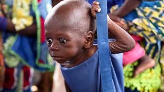 Foto: World Vision