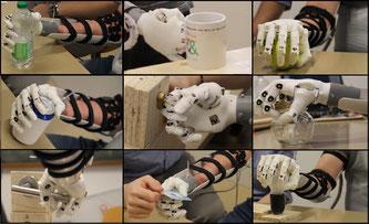 Dem Blick folgen – Die Handprothese verbessern  Bildquelle: Schweizerischer Nationalfonds