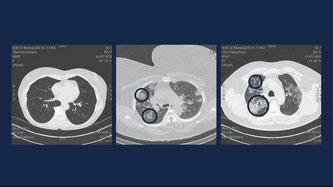 Notarzt Demeyer zeigt auch Aufnahmen der Lunge eines solchen Coronapatienten