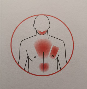 Immer noch gilt die sogenannte Herzinsuffizienz als nicht heilbar (Foto: Patricia Jungo)