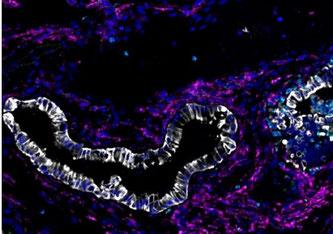Durch Aktivierung des PIK3CA-Onkogens ausgelöster Pankreaskrebs